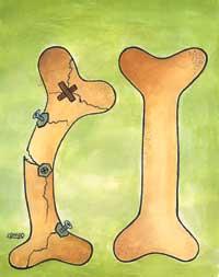 استخوان سازی و مفصل سازی با سنجد تجربه ای بسیار ذی قیمت در طب اسلامی و سنتی